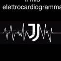 Jjilmioelettrocardiogramma